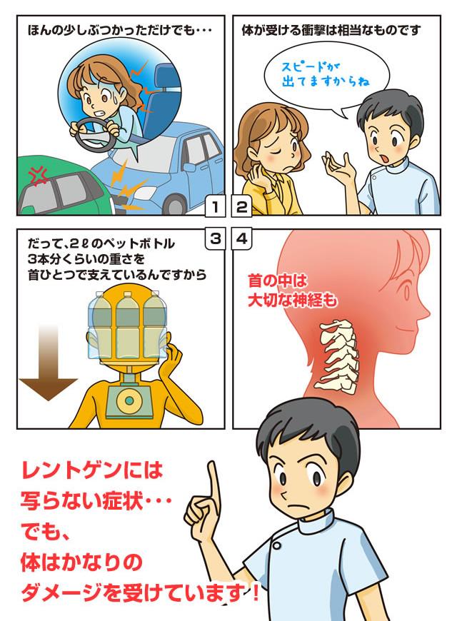 交通事故に遭ってレントゲンに写らない症状の交通事故漫画