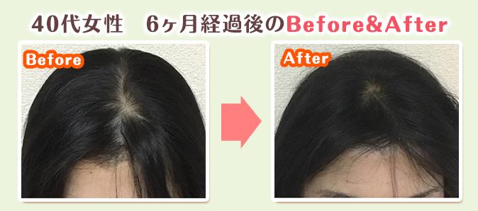 薄毛回復の様子3