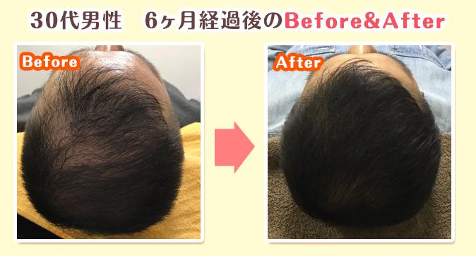 薄毛回復の様子4