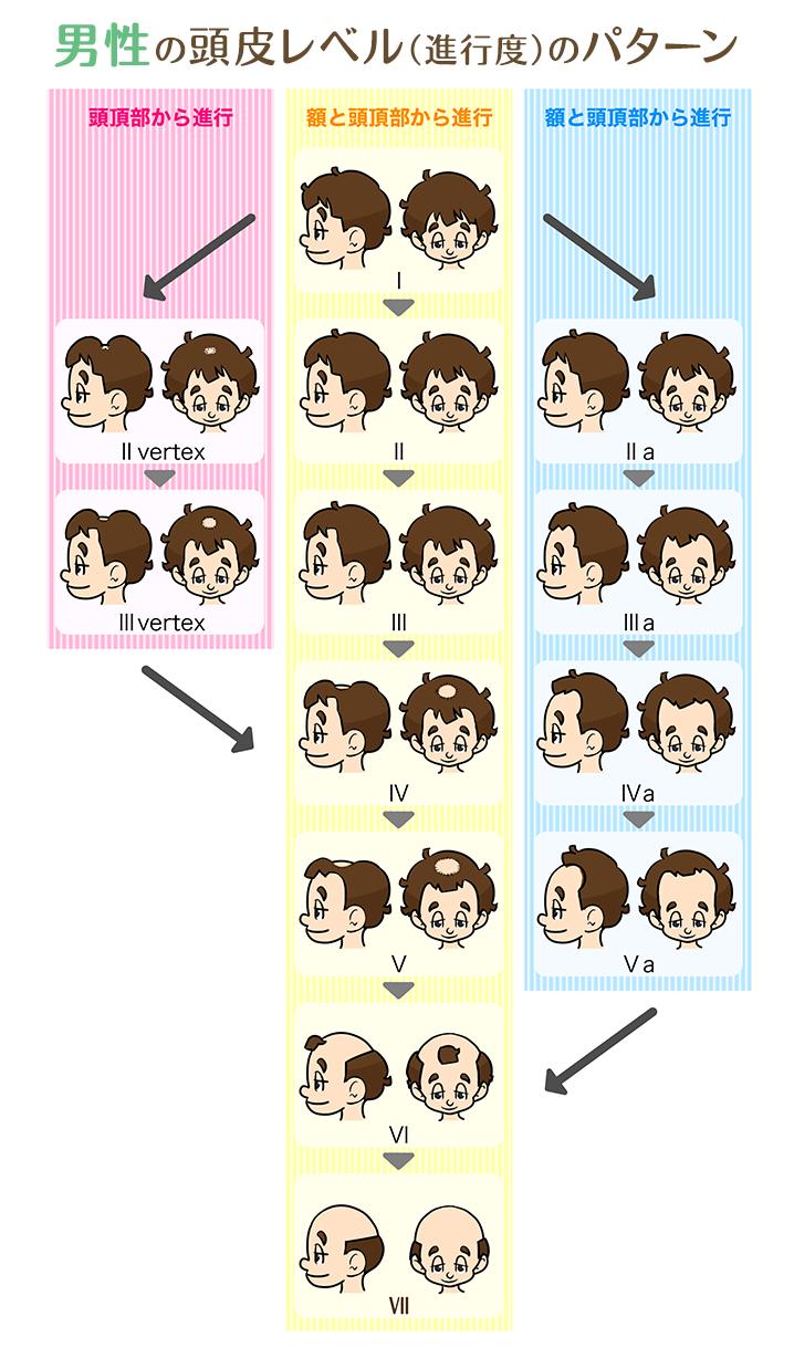 男性の頭皮レベル(進行度)のパターン